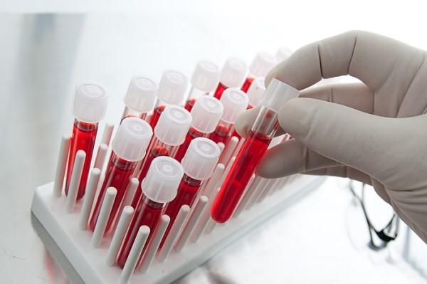 Анализ крови на токсоплазмоз: расшифровка