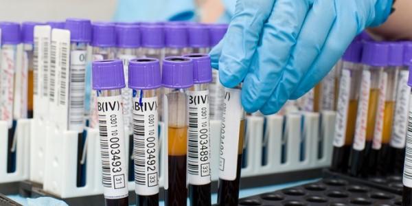 Анализ крови на глисты цена